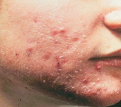 feature1004-acne_fig3_76081.jpg