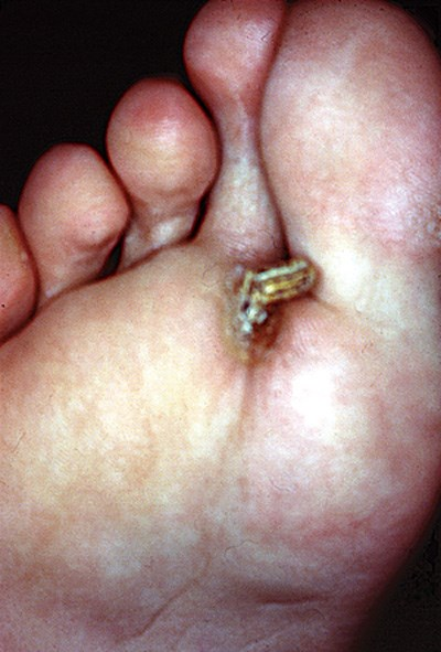 Rapidly enlarging conical lesion on the plantar surface