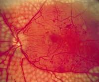 Figure 1. Funduscopy showing damage from diabetic retinopathy