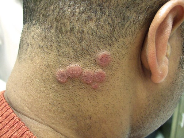 Pink indurated papules and plaques on a man's scalp