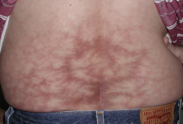 Asymptomatic netlike red-brown patch on the back
