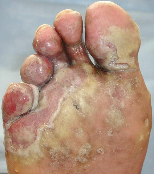 Pustules, maceration, and malodorous drainage of the foot