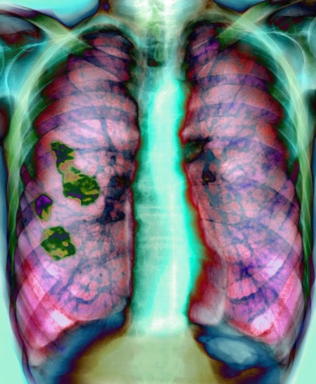Antibiotic benefits COPD patients
