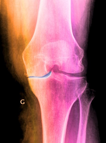 Osteoarthritis caused by erosion of the cartilage (blue) lining the knee