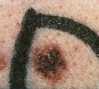 Dysplastic nevi moles pictures Cancerous Moles - Pictures, Symptoms, Treatment