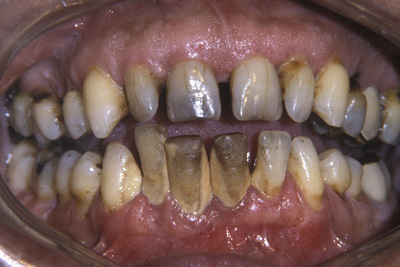 Figure 1. Periodontitis and tartar on the upper and lower teeth