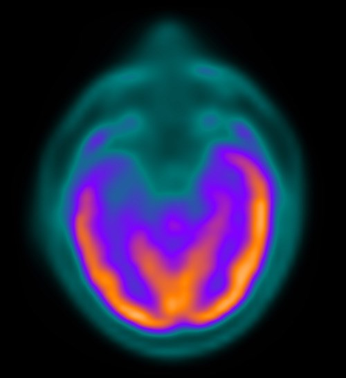 Brain CT shows right temporal lobe epilepsy with hypometabolism.