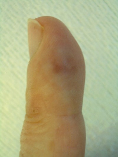 A tender finger papule, fever, and  abdominal pain