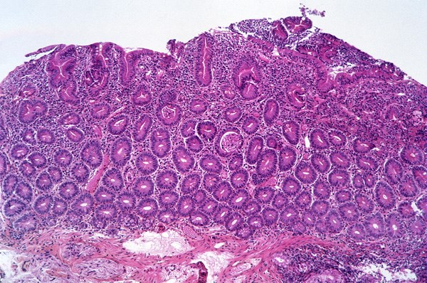 Photomicrograph of celiac disease showing complete atrophy of the duodenal villi.