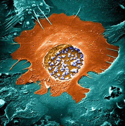 After infection, Chlamydia (blue) replicate in a large vesicle inside the cell.