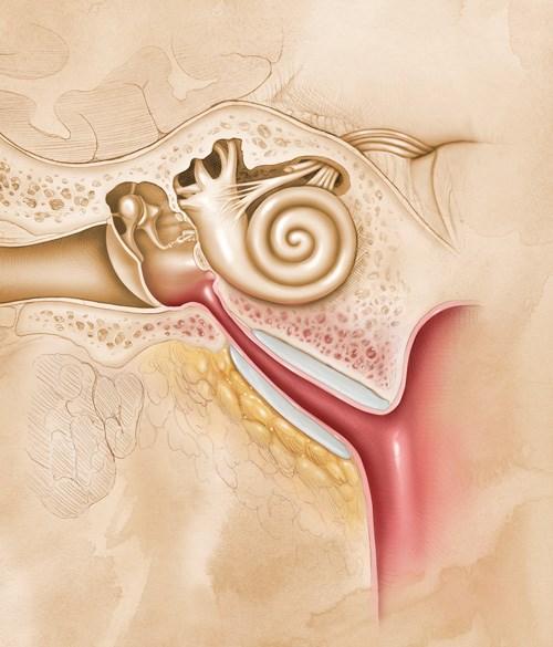 Chronic dysfunction of the eustachian tube
