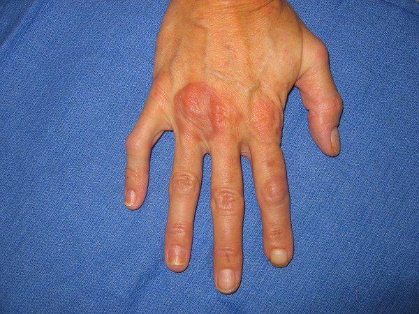 Asymptomatic red plaque on the hand of a diabetic patient