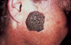 Elderly woman's thick warty lesion