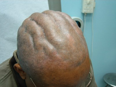 Thick ridges and valleys found on a newly shaved scalp