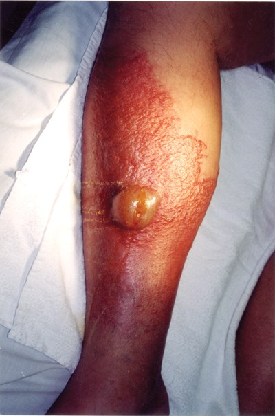 A bright yellow blister developed on the patient's leg