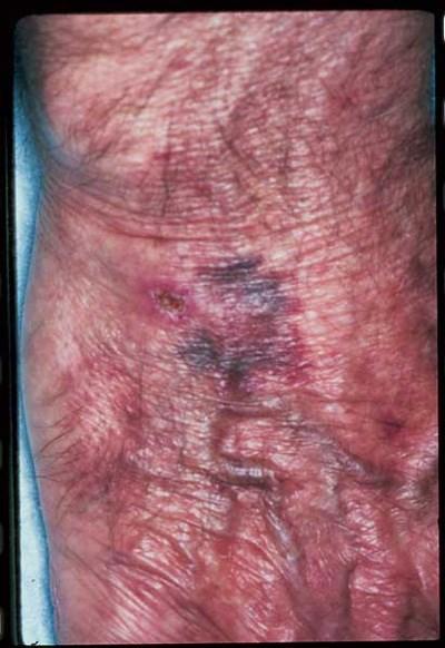 Purple blotches in an elderly man with atrial fibrillation