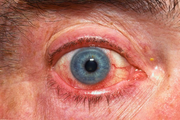 Acute conjunctivitis (&quot;pink eye&quot;) with marginal corneal inflammation