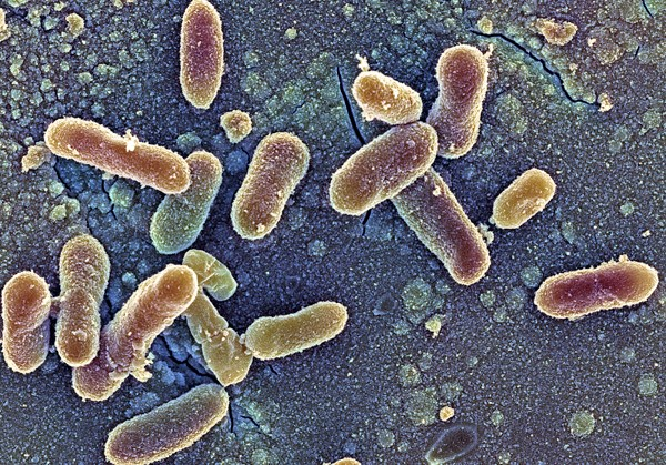 The majority of cases involving infection with salmonella (brown) do not require antibiotics