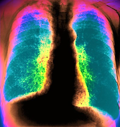 X-ray showing acute miliary TB reveals many fine micronodules
