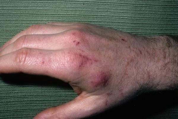 cat scratch rash