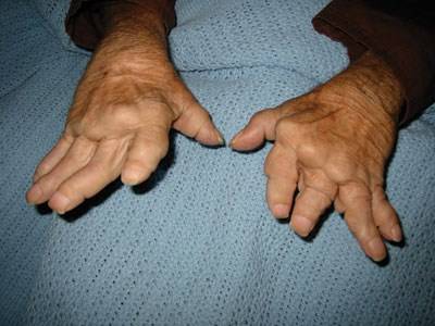 Figure 2. The patient also had arthritis mutilans of the hands.
