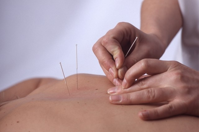 Pain relief with acupuncture is unaffected by needle location or penetration