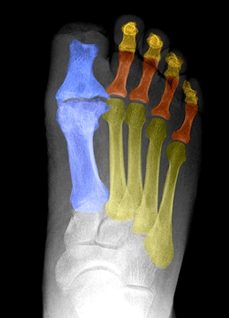Foot x-ray of a diabetic shows evidence of amputation of the distal portion of the first toe