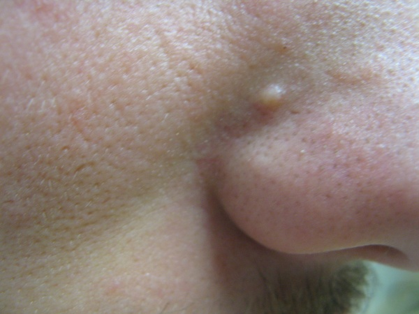 fibrous papules of the nose #10