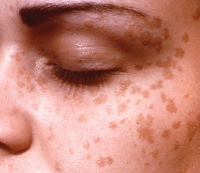 Exacerbation of asymptomatic flat facial lesions