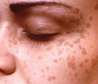 Slideshow: Precancerous Skin Lesions and Skin Cancer