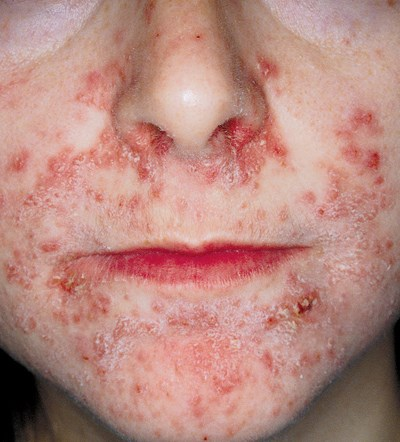 Months-long facial rash with constant burning sensation