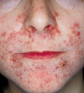 Months Long Facial Rash With Constant Burning Sensation