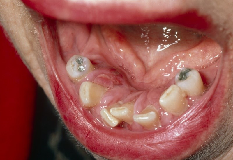 Gingivitis is caused by bacteria found in dental plaque.