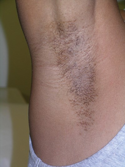 Bilateral pruritic  papules on a woman's axillae