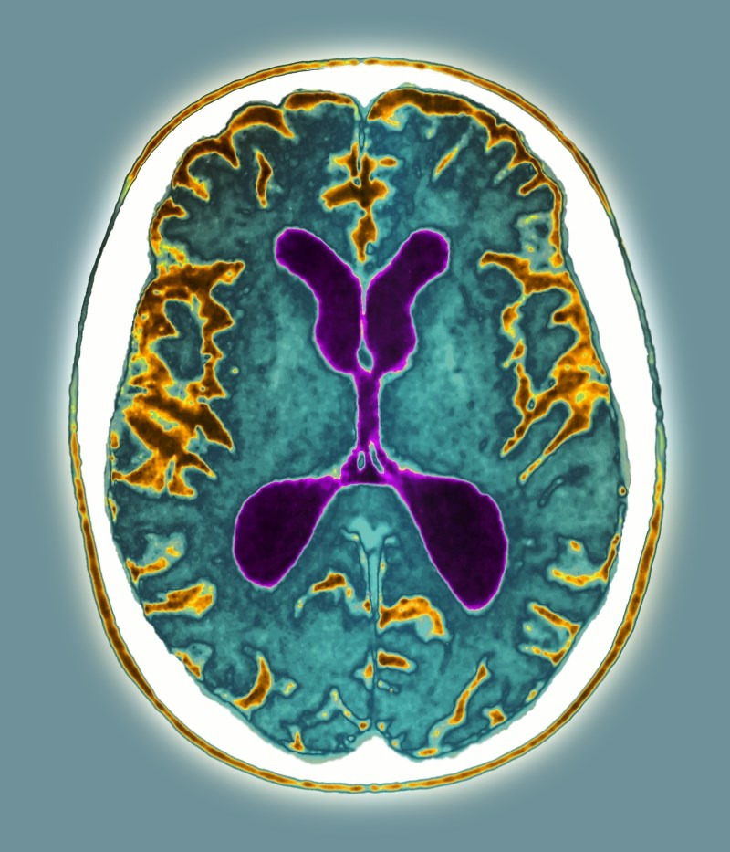 Alzheimer's demands multiple diagnostics