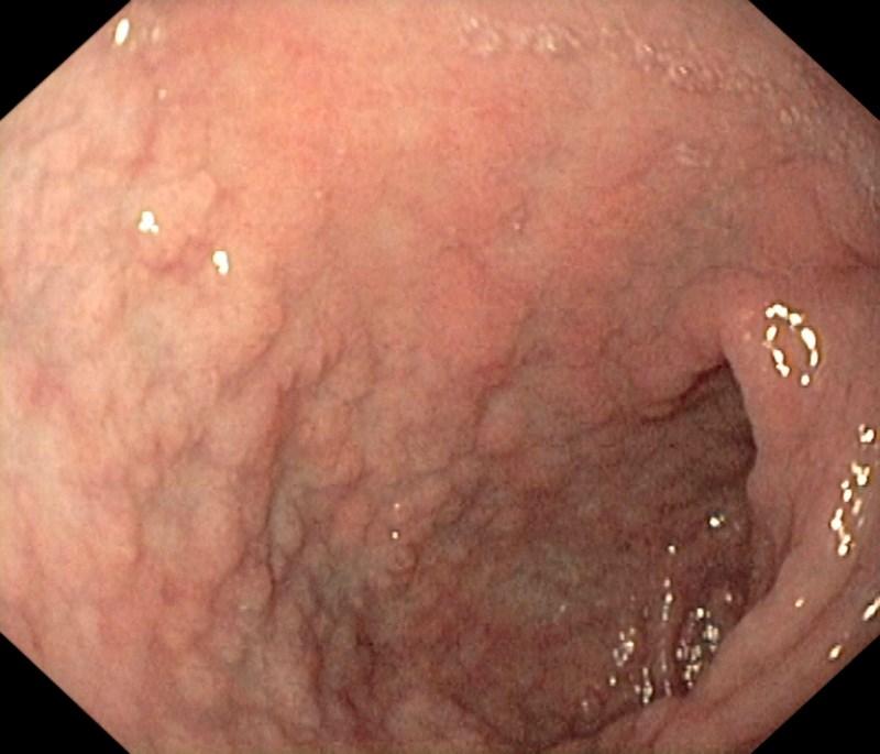 Celiac disease now more widespread