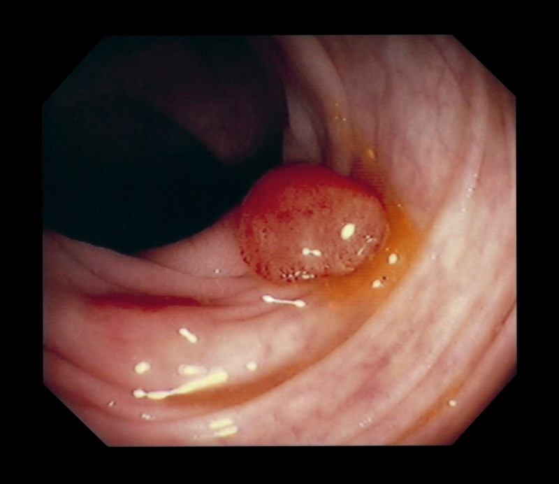 Colonic polyps may cause discomfort and obstruct the passage of food.