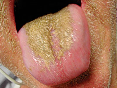 Tongue plaque with offensive odor