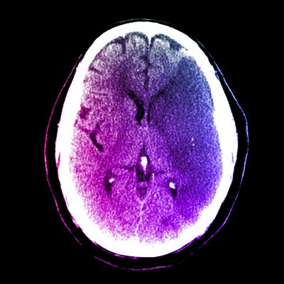 Dementia related to recurrent stroke