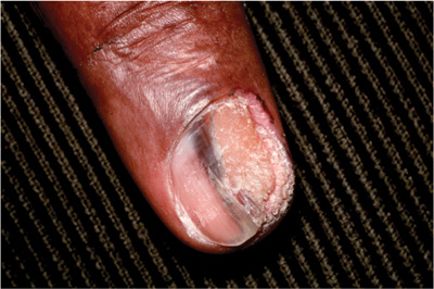 four nail disorders every clinician should know the