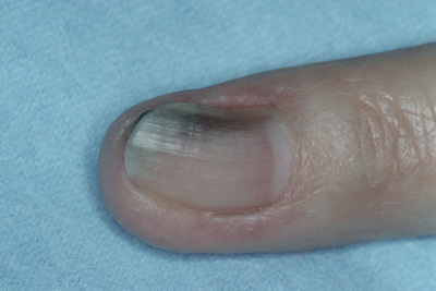 Four Nail Disorders Every Clinician Should Know - The Clinical Advisor