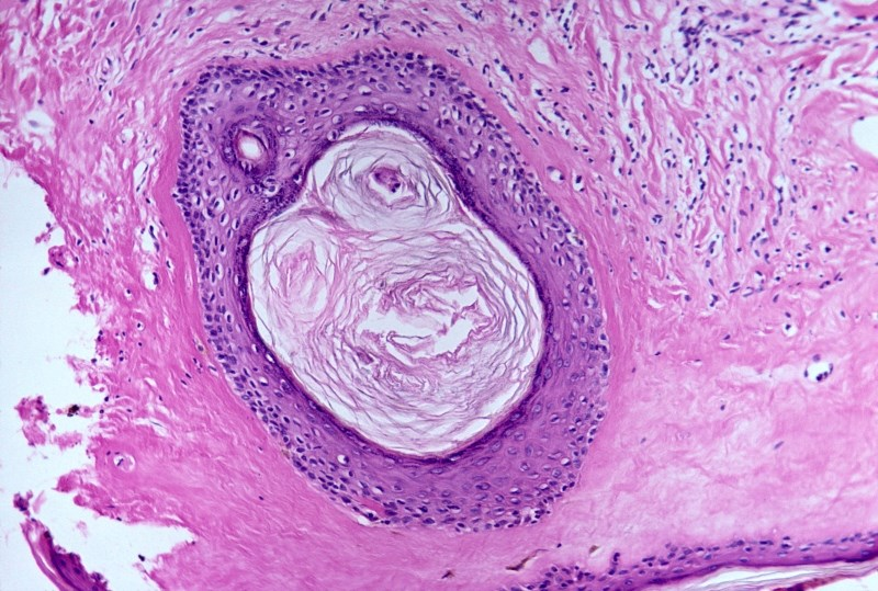 Ultrapotent topical corticosteroids are the treatment of choice for vulvar lichen sclerosus patients
