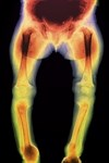 Vitamin D important for more than bone density