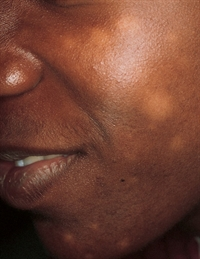 White Areas On The Face Of A Teenager The Clinical Advisor