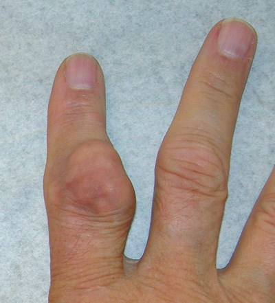 Accumulation of uric acid crystals in the joints causes inflammation.