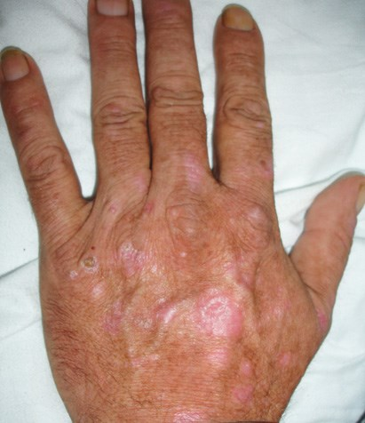 Atrophic rash in a hepatitis C patient