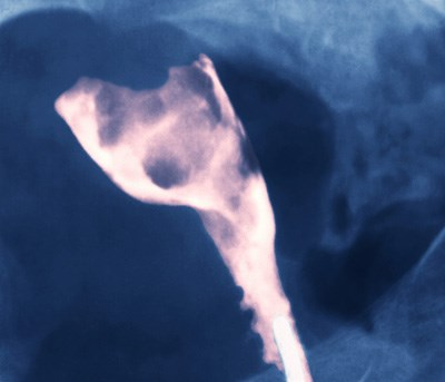 Screening for endometrial cancer
