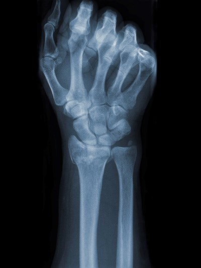 Denosumab Repaired Cortical Bone Loss in Osteoporosis
