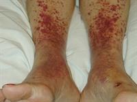 Vascular skin problems | DermNet New Zealand