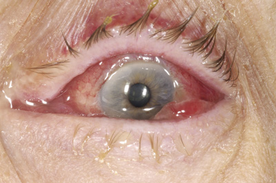 Causes and treatment of bacterial conjunctivitis - The Clinical ...
